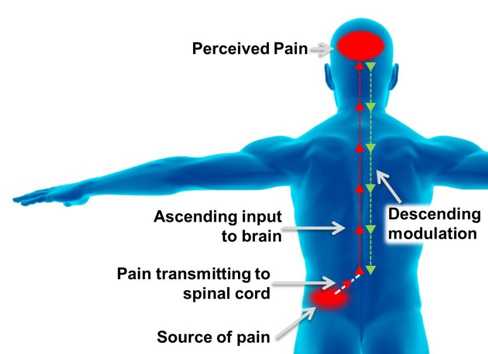 Chronic Pain & Central Sensitization Illustration 12-14-15