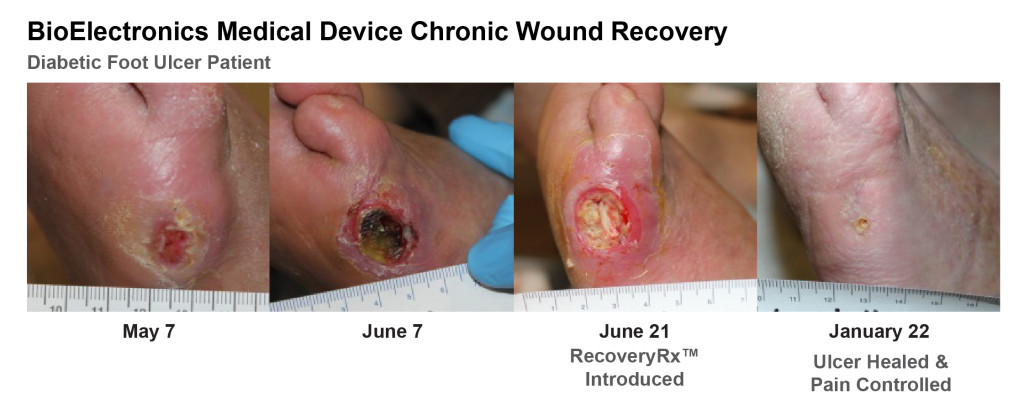 RecoveryRx Chronic Wound Recovery